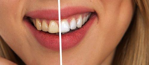 Cum să ai grijă de dinţii tăi